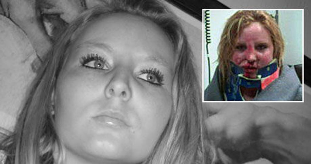 FORANDRET ALT: Slik så Inger Stine Bekkemoen (19) ut etter ulykken på badeplassen i Åsnes. I dag kan ingen se at noe feiler henne.