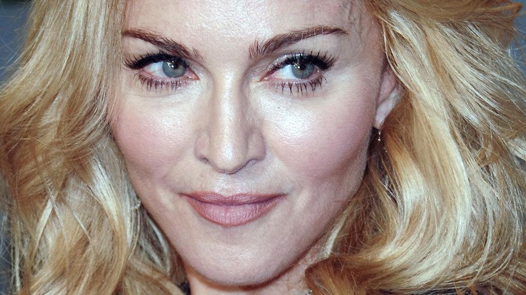 SKADET: Madonna har vært utsatt for nok en ulykke på hesteryggen.
