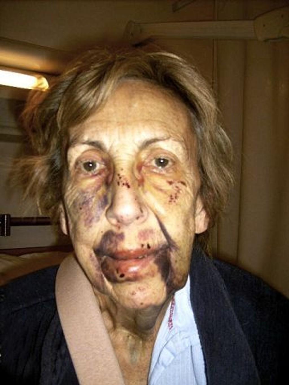 Dette bildet av Gunhild Baumannn er tatt tre dager etter fallet og hevelsene i ansiktet er halvert. Foto: Grethe Baumann