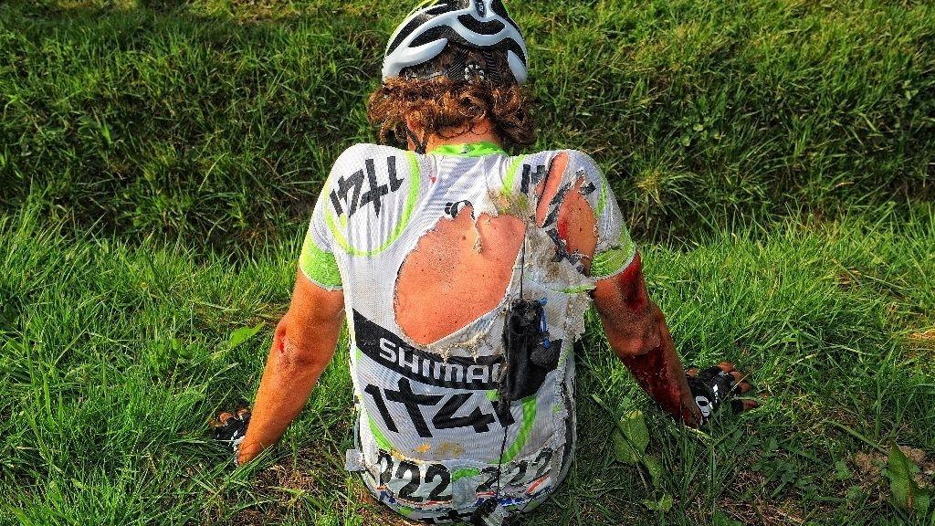 BLOD ALRVOR: Sykkelsporten er smertefull. Det vet Koen De Kort alt om.