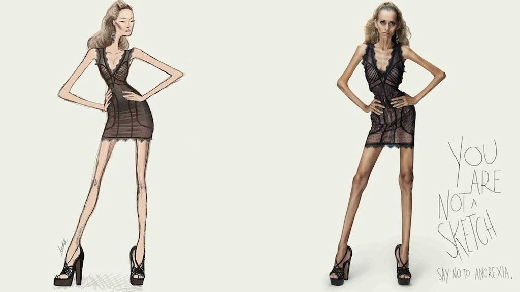 ANTIANOREKSI: «Du er ikke en skisse, si nei til anoreksi» er budskapet til modellbyrået som står bak kampanjen.
