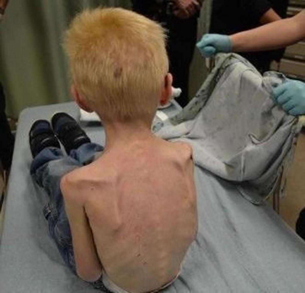 UTSULTET: Gutten på bildet ble angivelig holdt innesperret i et skap under trappen. Faren og stemoren er arrestert for å ha forsømt gutten.
