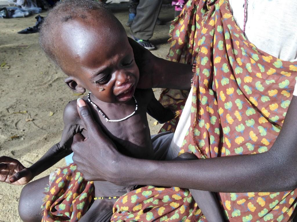 En Mor i Sør-Sudan holder sitt underernærte barn ved et feltsykehus som drives av Leger Uten Grenser. Sør-Sudan står overfor en omfattende sultkatastrofe om verdenssamfunnet ikke bidrar med hjelp.