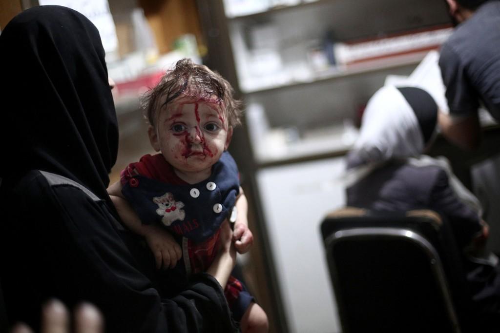 Et skadd barn venter på å få behandling på et provisorisk sykehus i Douma, nordøyst for Damaskus søndag.
