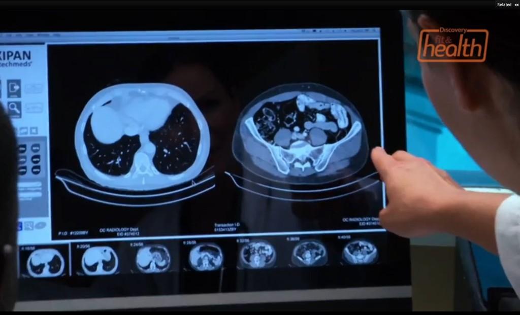 BENDELORM: En mor i Florida skal ha forsøkt å slanke sin egen tenåringsdatter med bendelorm. Foto: Discovery fit & health.