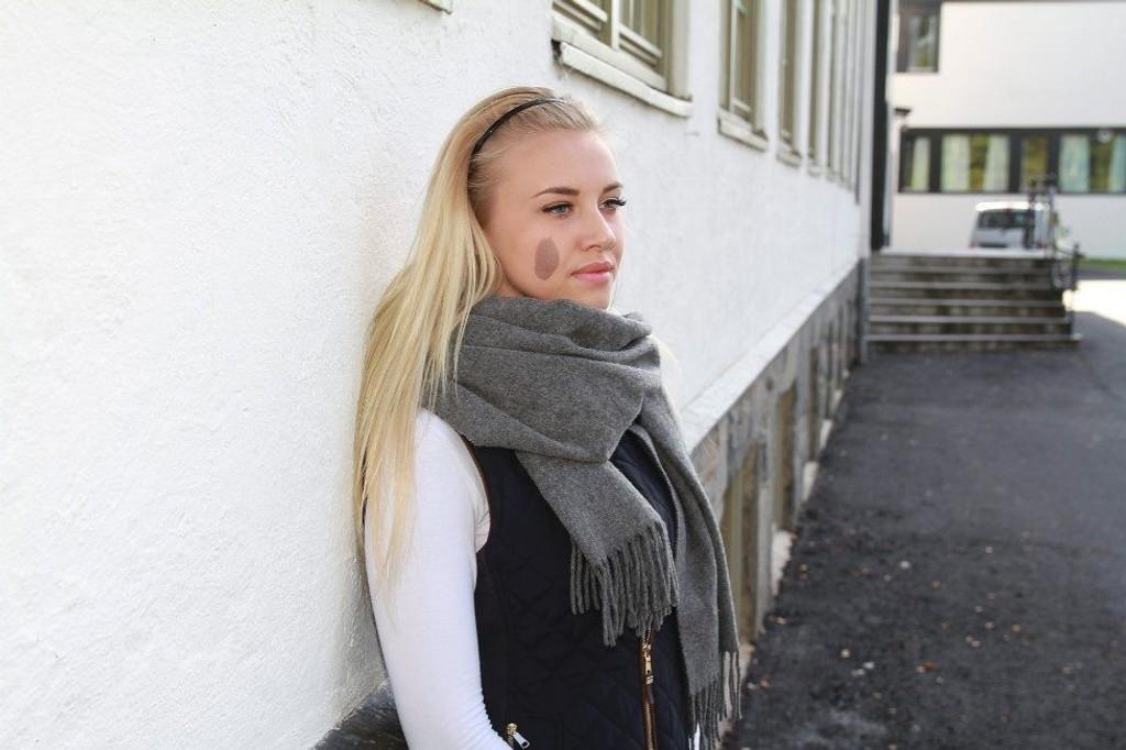 SIER IFRA: Sessa Hansen er blitt mobbet for fødselsmerket i ansiktet siden barneskolen. Nå har hun et knallhardt oppgjør mot mobberne.