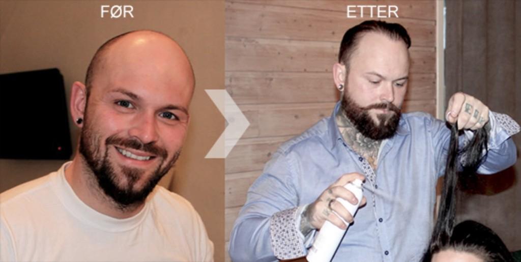 Bildet viser frisør og stylist Tom Ur Kjørsvik før han hadde begynt med behandling, og etter.