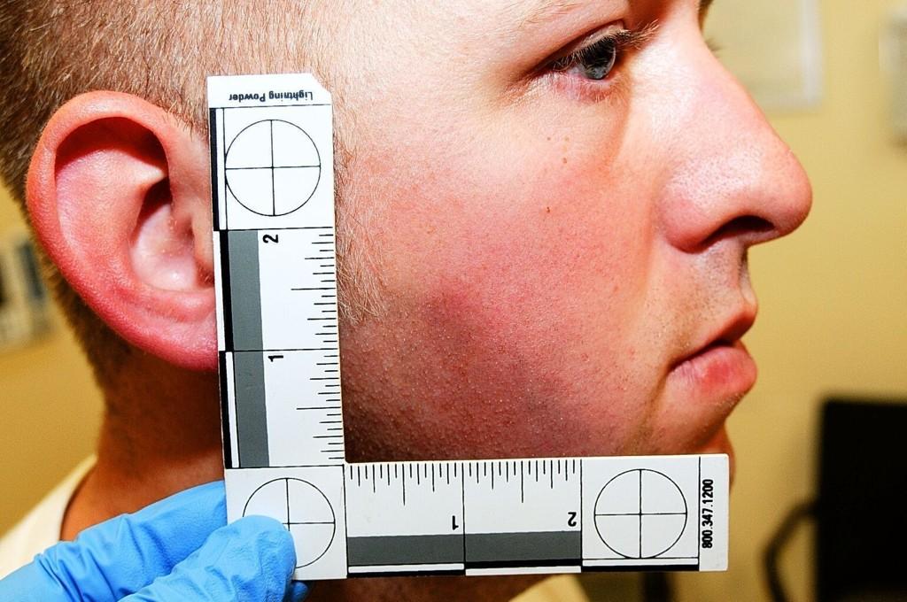 Darren Wilson avbildet under den medisinske undersøkelsen på Christian Hospital i St. Louis, kort tid etter drapet.