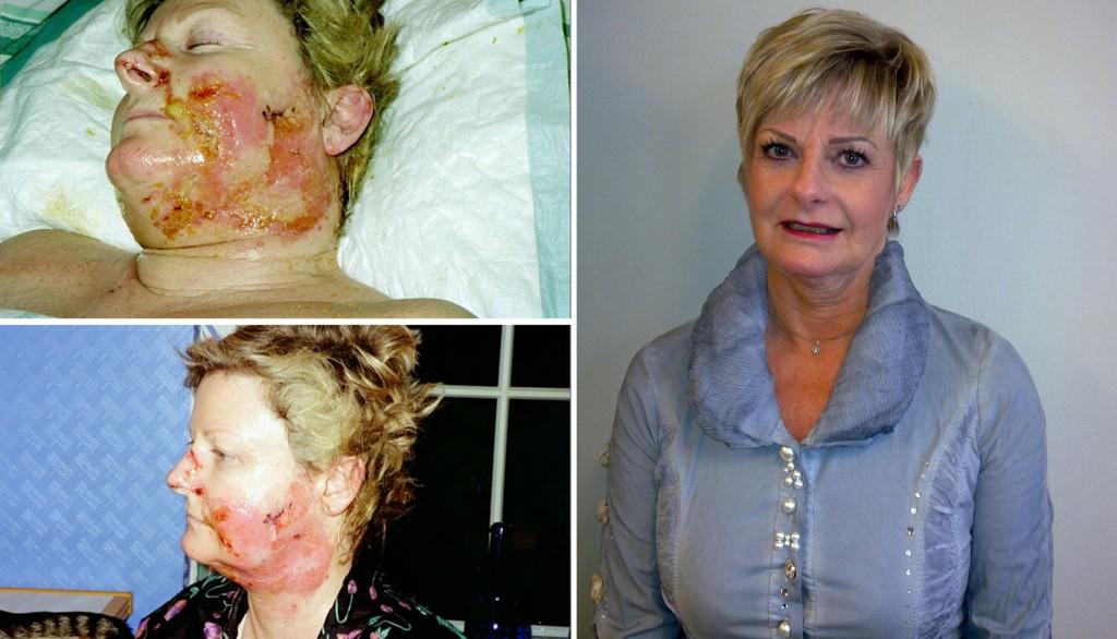 Slik så Asgerd Waaler ut da hun lå på Ahus etter rakettulykken (øverst til venstre). Fortsatt har hun svært dårlig hørsel.