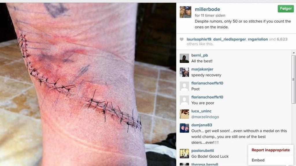 50 STING: Bode Miller viser fram leggen på Instagram. FOTO: skjermdump Instagram / millerbode