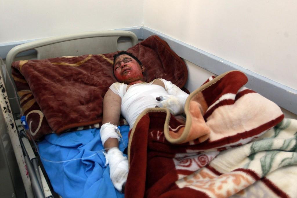 FORBRENT: Et barn får behandling på brannskadeavdelingen på et sykehus i hovedstaden Sanaa onsdag etter et luftangrep over byen dagen i forveien
