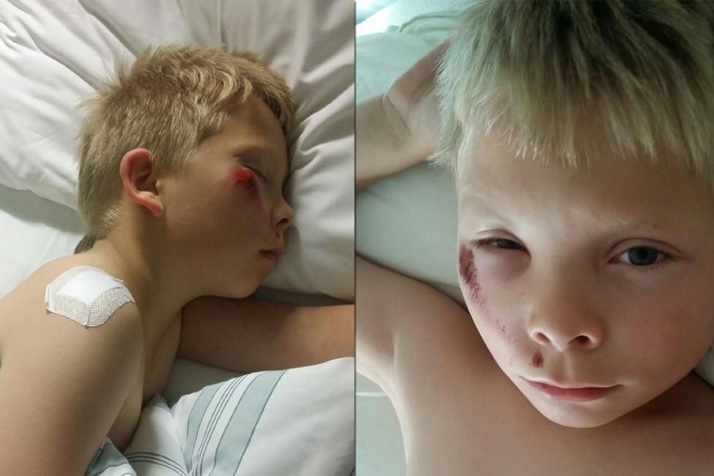 Tobias fikk konstatert hjernerystelse etter sykkeluhellet. Fortsatt har han mye vondt og er hjemme fra skolen.