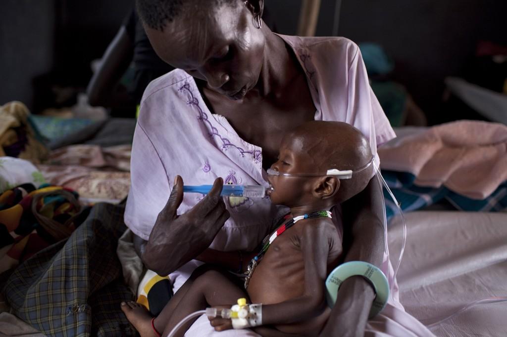 – Over 38 prosent av barna under fem år i Sudan, er kronisk undernært, ifølge Unicef. Arkivfoto.