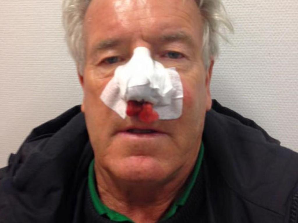 DRAMATISK: TV 2s Davy Wathne fortalte på Facebook ulykken etter en rens av takrennene.