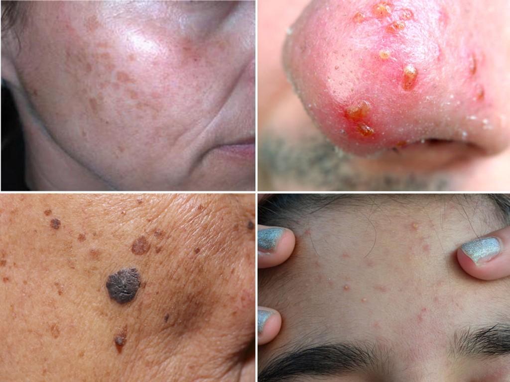 SOLSKADER: Pigmentforandringer, alvorlig solforbrennelse, tilstoppede porer og i verste fall hudkreft kan være følgene av å ikke beskytte seg i påskesolen.