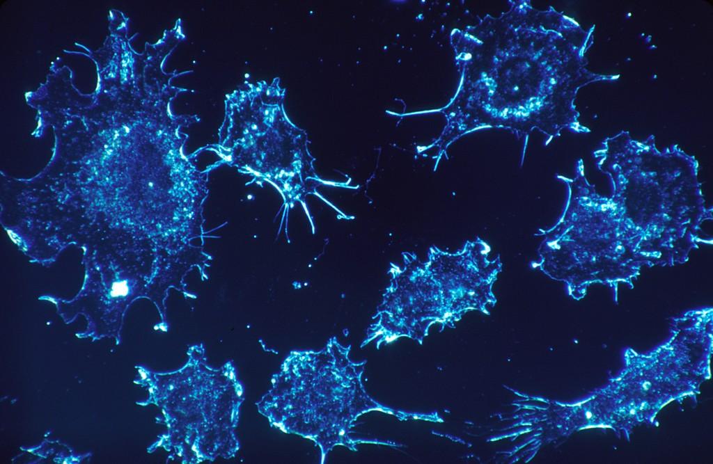 brystkreft symptomer bilder