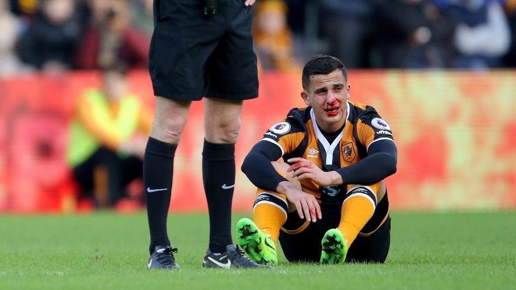 KNEKK: Omar Elabdellaoui brakk nesa i starten av kampen mot Liverpool.