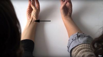 SJEKK DEG SELV: Vend undersiden av armen mot deg, klem tommel og lillefinger sammen og løft hånden litt. Dukker det opp en sene på underarmen?