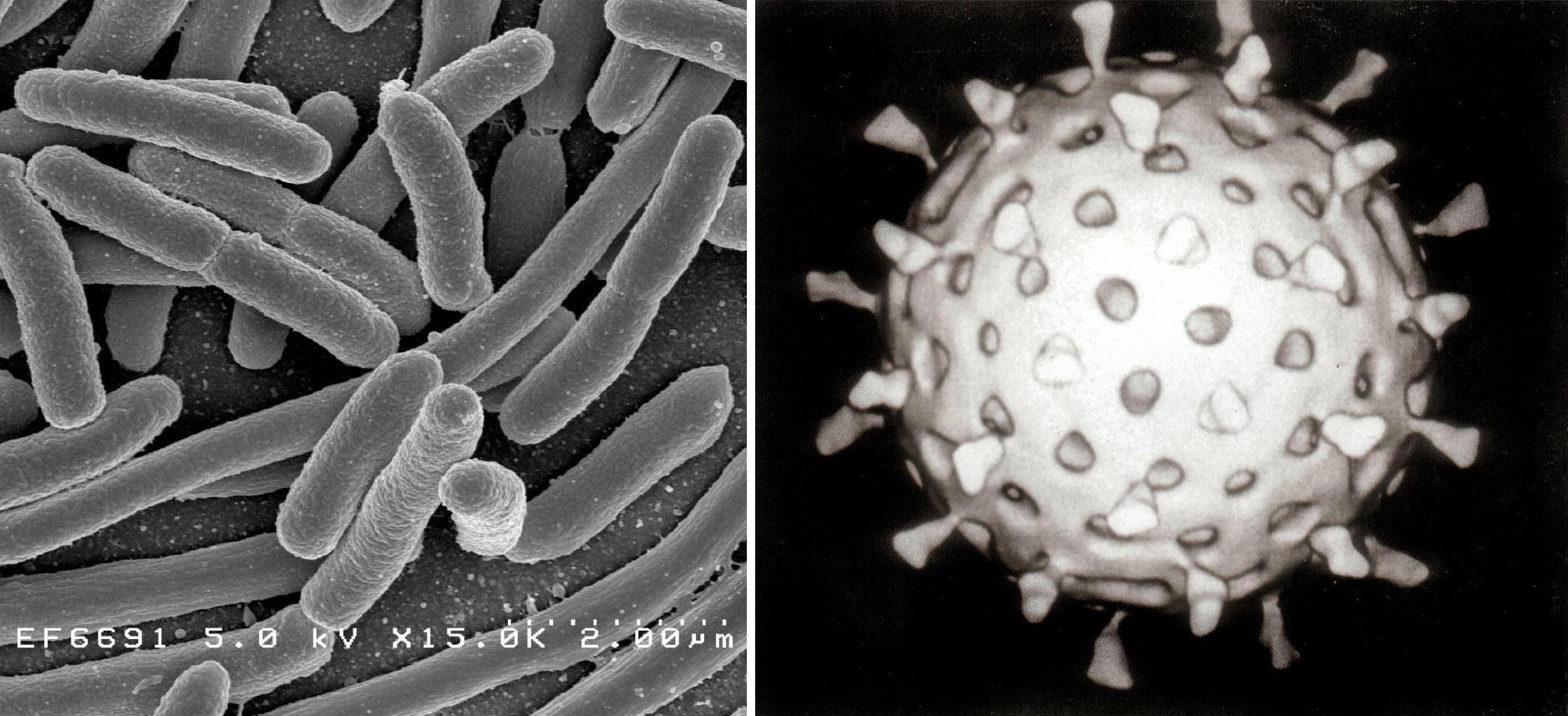 DET ULTIMATE MARERITTET: Dersom noen er gale eller uheldige nok til å skape og slippe fri en bakterie som inneholder et virus, kan det være spikeren i kisten for menneskeheten, sier Serguei Popov, tidligere leder for det hemmelige, sovjetiske laboratoriet Vector. Bildet er en illustrasjon, og viser bakterien E.coli til venstre og et rotavirus til høyre.