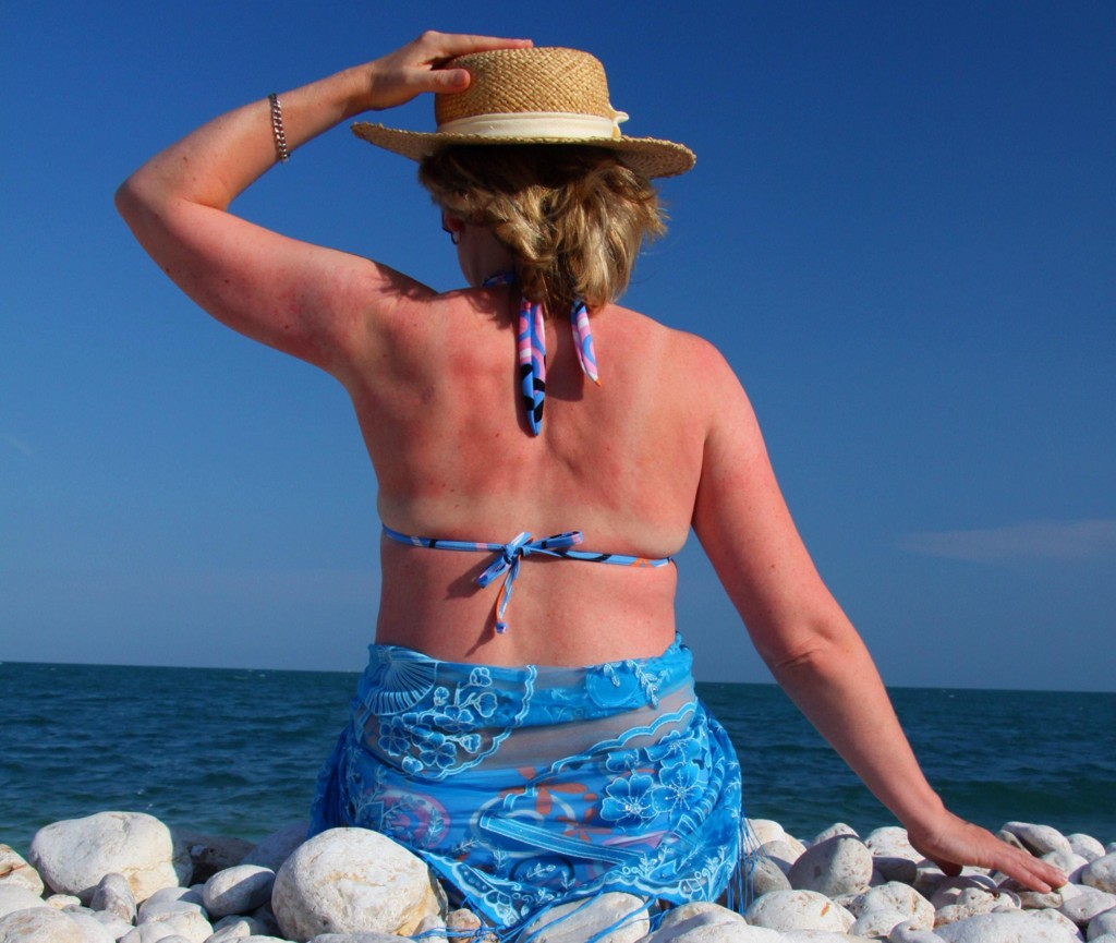 Solbrente rygger kan være fryktelig vonde.