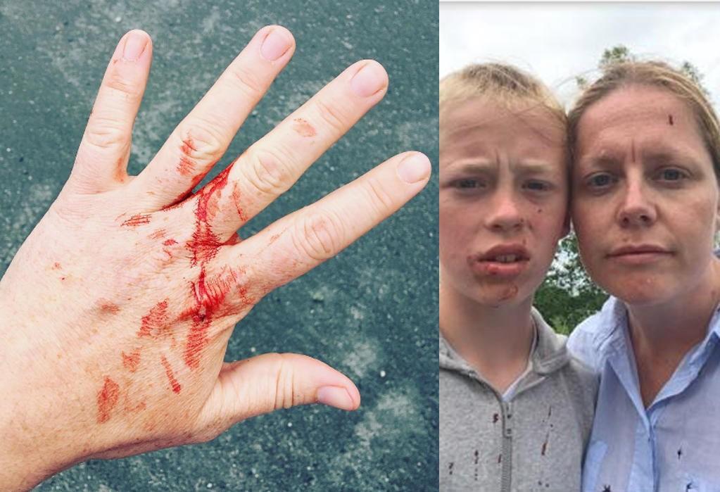 KUTT: Glass blåste inn i bilen, og ga familien kuttskader. Helene Moe Slinning oppfordrer bilister til å stoppe når noe skjer i trafikken.