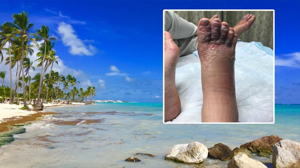 Etter å ha gått på denne stranden i ferieparadiset, opplevde kjæresteparet å få beina infisert med hakeormer.