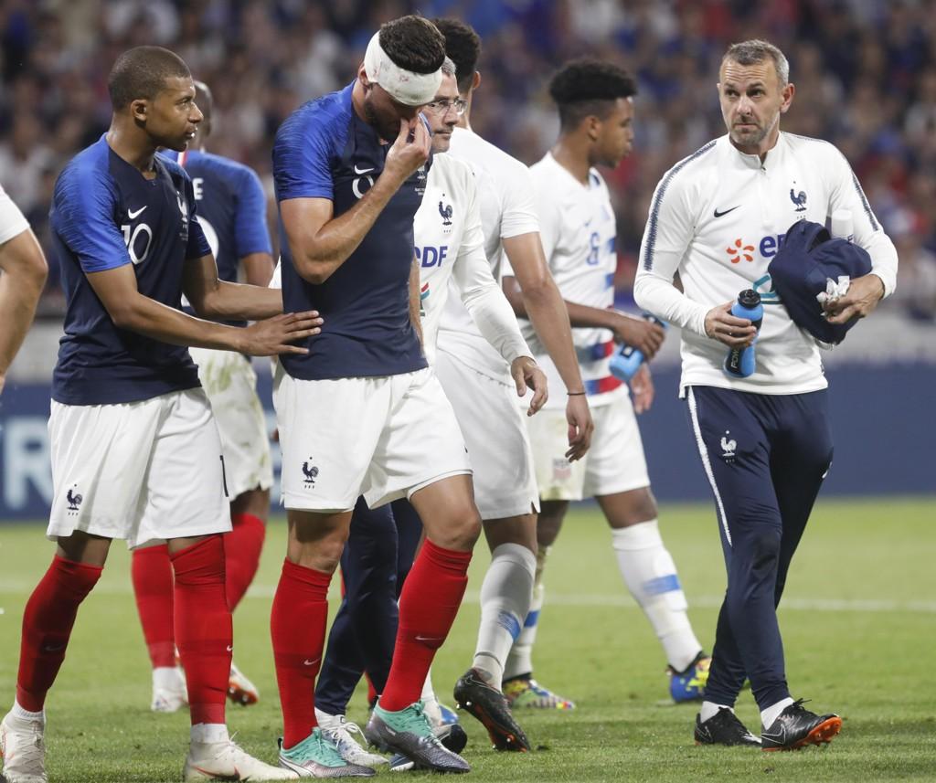 Olivier Giroud pådro seg hjernerystelse mot USA lørdag. Foto: AP Photo/Laurent Cipriani/NTB scanpix.
