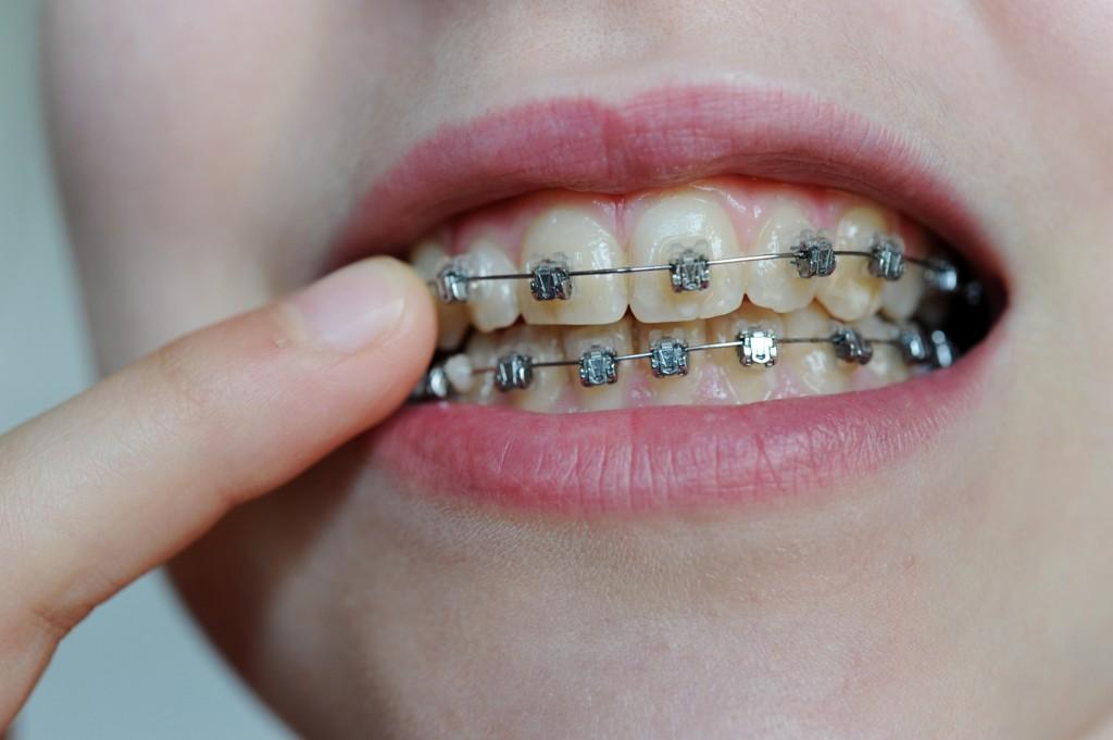 Dagens støtteordning til tannregulering kan bli barbert når regjeringens forslag til neste års statsbudsjett legges fram i oktober.